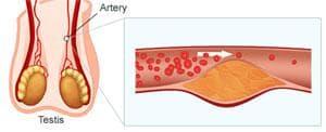 Kamagra in Viagra širita krvne žile